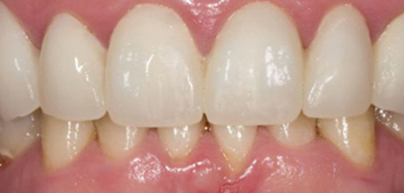 Cosmetic Veeners to Enhance Smile