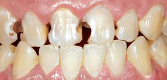 Tooth Fillings Before