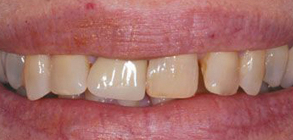Veneers lay on Top of Existing